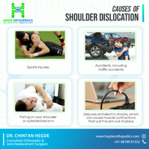 Causes of Shoulder Dislocation
