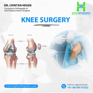 knee surgery3